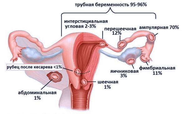Виды внематочной беременности