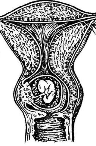 Шеечная внематочная беременность