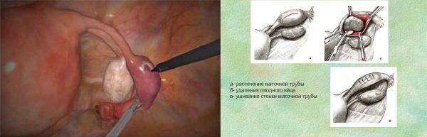 Суть операции при туботомии