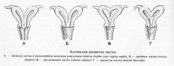 Варианты неправильного сформированного органа матки