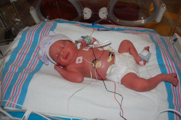 новорожденный на 34 неделе