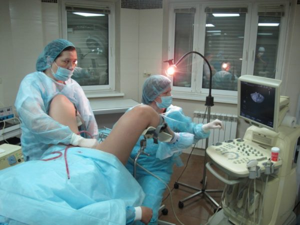 Врачи делают женщине аборт и следят за ходом операции с помощью УЗИ-аппаратуры