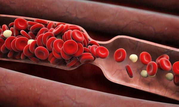 клетки крови склеились на схеме