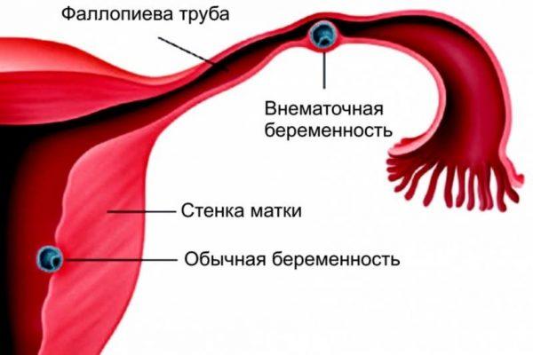 эмбрион в фаллопиевой трубе на схеме